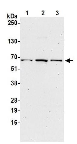 Western blot - Anti-FAM114A2 antibody (ab241987)