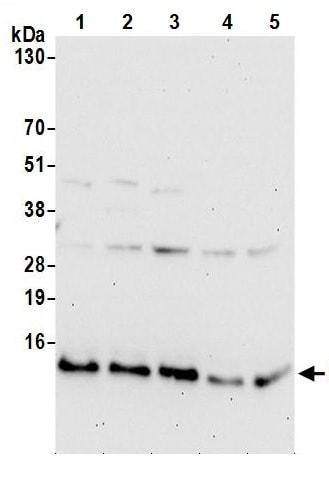 Western blot - Anti-UQCRQ antibody (ab241991)