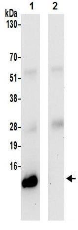 Immunoprecipitation - Anti-UQCRQ antibody (ab241991)
