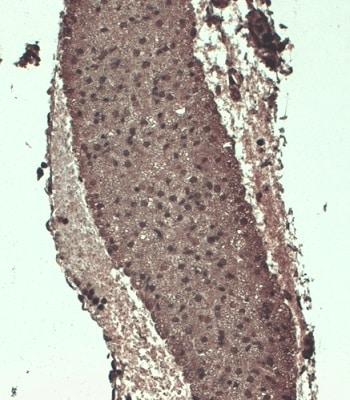 Immunohistochemistry (Formalin/PFA-fixed paraffin-embedded sections) - Anti-Sodium Iodide Symporter antibody [FP5] (ab242007)