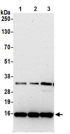 Western blot - Anti-CFA antibody (ab242047)