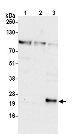Western blot - Anti-GCET2 antibody (ab242050)