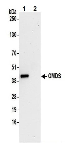 Immunoprecipitation - Anti-GMDS antibody (ab242051)