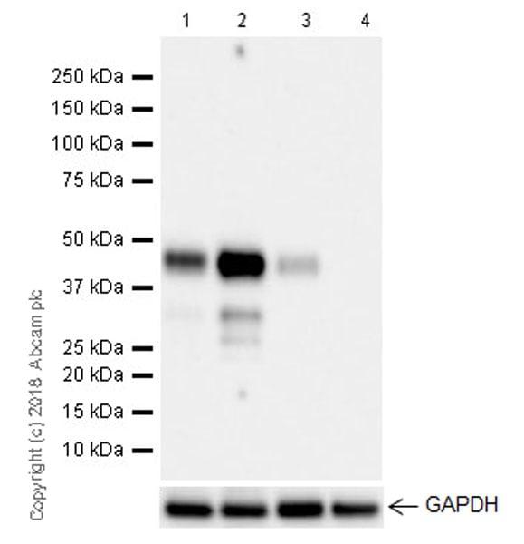 Western blot - Anti-MEF2B antibody [EPR22193-26] (ab242058)
