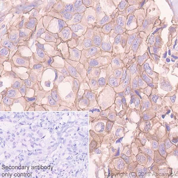 Immunohistochemistry (Formalin/PFA-fixed paraffin-embedded sections) - Anti-P cadherin antibody [EPR22426] (ab242060)