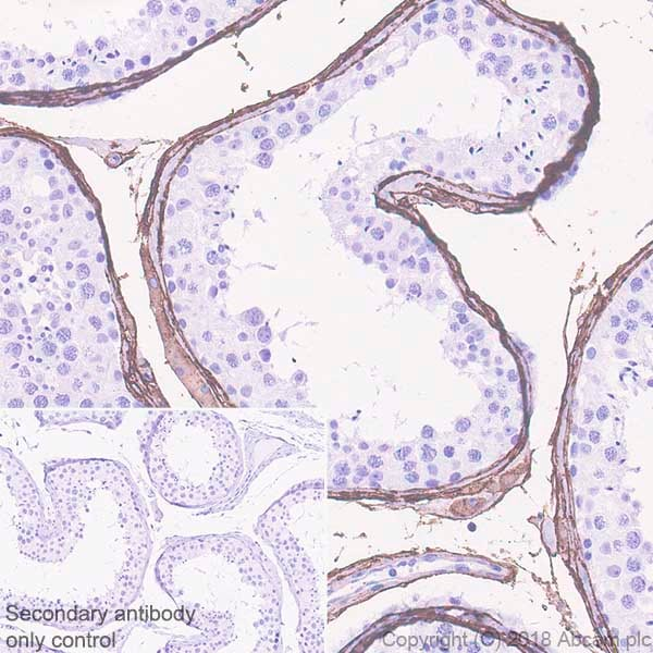 Immunohistochemistry (Formalin/PFA-fixed paraffin-embedded sections) - Anti-DPEP1/MDP antibody [EPR22222] - BSA and Azide free (ab242083)