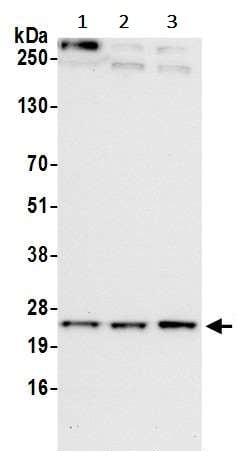 Western blot - Anti-TMEM33 antibody (ab242108)