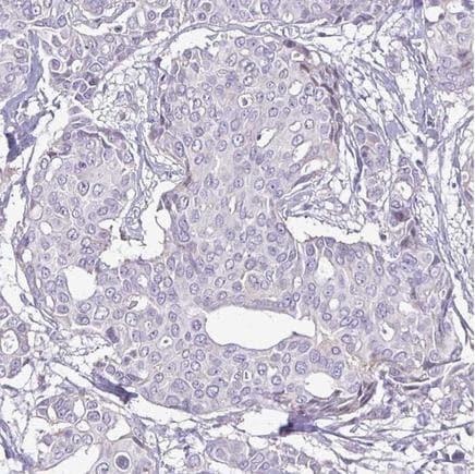 Immunohistochemistry (Formalin/PFA-fixed paraffin-embedded sections) - Anti-ErbB 2 antibody [CL0268] (ab242195)