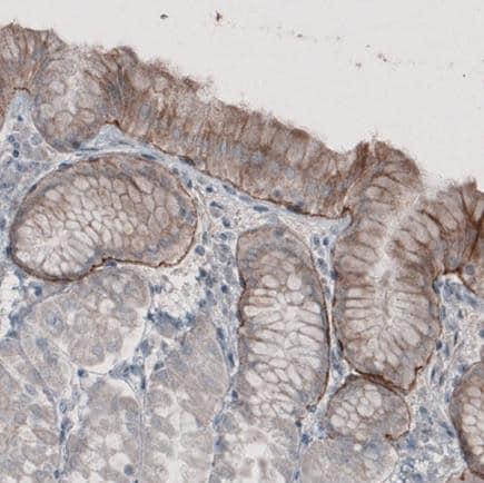 Immunohistochemistry (Formalin/PFA-fixed paraffin-embedded sections) - Anti-LAMA3 antibody [CL3112] (ab242197)