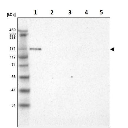 Western blot - Anti-LAMA3 antibody [CL3112] (ab242197)