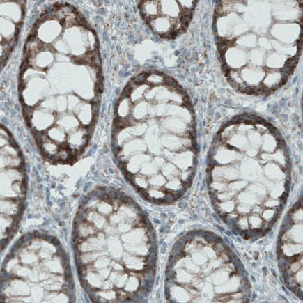 Immunohistochemistry (Formalin/PFA-fixed paraffin-embedded sections) - Anti-MACC1 antibody [CL0856] (ab242199)