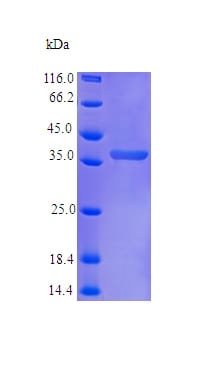 SDS-PAGE - Recombinant human CCN3 protein (Active) (ab242211)