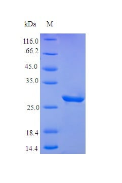 SDS-PAGE - Recombinant human IGFBP3 protein (Active) (ab242214)