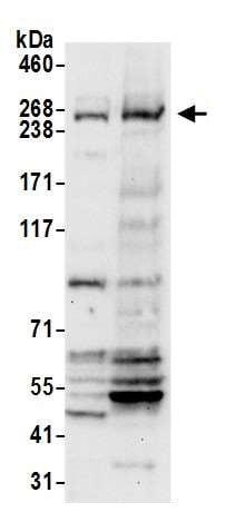 Western blot - Anti-NBAS antibody (ab242220)
