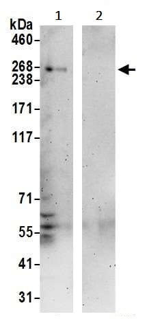 Immunoprecipitation - Anti-NBAS antibody (ab242220)