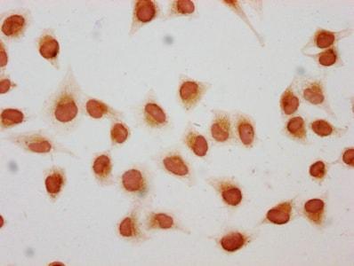 Immunocytochemistry - Anti-Histone H1.2 (2-hydroxyisobutyryl K158) antibody (ab242273)