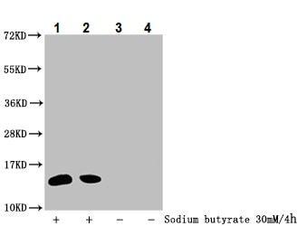 Western blot - Anti-Histone H2B (2-hydroxyisobutyryl K34) antibody (ab242275)