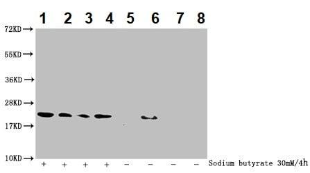 Western blot - Anti-Histone H1.2 (2-hydroxyisobutyryl K26) antibody (ab242277)