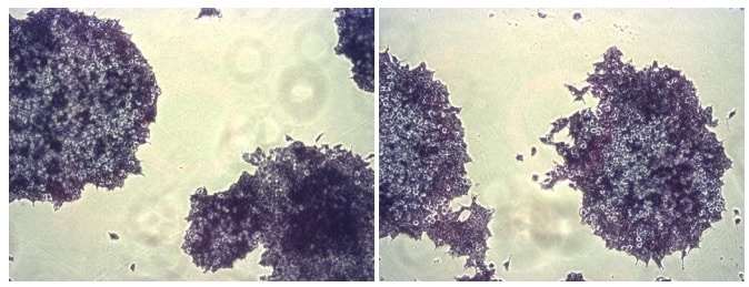 AP staining of ES Cells.