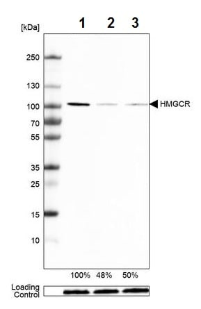 Western blot - Anti-HMGCR antibody [CL0260] (ab242315)