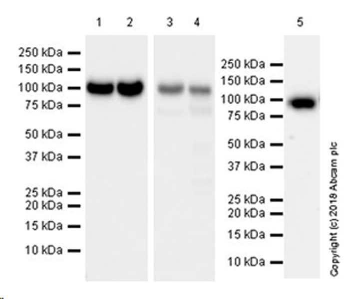 Western blot - Anti-Plasminogen antibody [EPR22254-115] (ab242329)