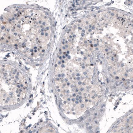 Immunohistochemistry (Formalin/PFA-fixed paraffin-embedded sections) - Anti-CDKL5 antibody [CL4888] (ab242358)