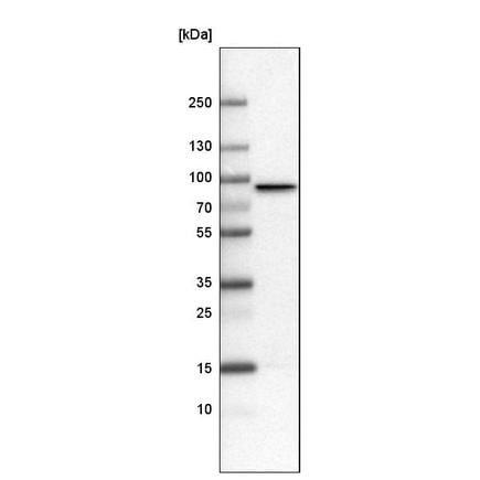 Western blot - Anti-CARS antibody [CL2302] (ab242361)