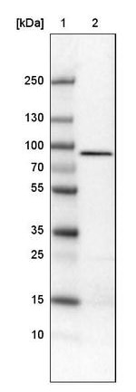 Western blot - Anti-CARS antibody [CL2304] (ab242364)
