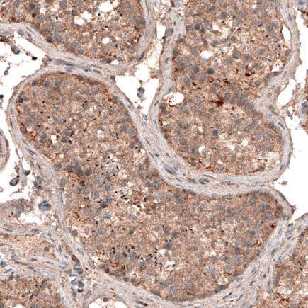 Immunohistochemistry (Formalin/PFA-fixed paraffin-embedded sections) - Anti-LAPTM4B antibody [CL5287] (ab242372)