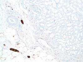 Immunohistochemistry (Formalin/PFA-fixed paraffin-embedded sections) - Anti-S100 beta antibody [SP127] - BSA and Azide free (ab242388)