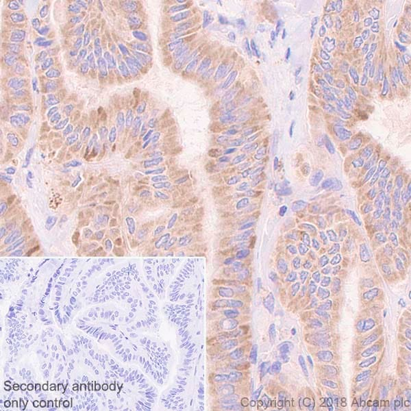 Immunohistochemistry (Formalin/PFA-fixed paraffin-embedded sections) - Anti-AP2S1 antibody [EPR2697(2)] - BSA and Azide free (ab242393)