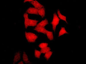 Immunocytochemistry/ Immunofluorescence - Anti-LMCD1 antibody [EPR11444] - BSA and Azide free (ab242401)