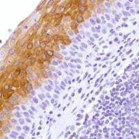Immunohistochemistry (Formalin/PFA-fixed paraffin-embedded sections) - Anti-Cytokeratin 4 antibody [SP210] - BSA and Azide free (ab242402)