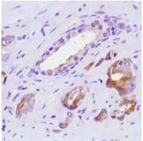 Immunohistochemistry (Formalin/PFA-fixed paraffin-embedded sections) - Anti-Slit2 antibody [SP122] - BSA and Azide free (ab242404)