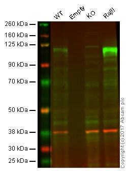 Western blot - Anti-Ctip1/BCL-11A antibody [EPR14943-44] - BSA and Azide free (ab242406)