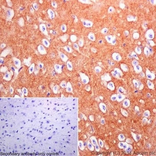 Immunohistochemistry (Formalin/PFA-fixed paraffin-embedded sections) - Anti-DPP6 antibody [EPR15944-24] - BSA and Azide free (ab242409)
