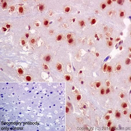 Immunohistochemistry (Formalin/PFA-fixed paraffin-embedded sections) - Anti-HuR / ELAVL1 antibody [EPR17397] - BSA and Azide free (ab242410)