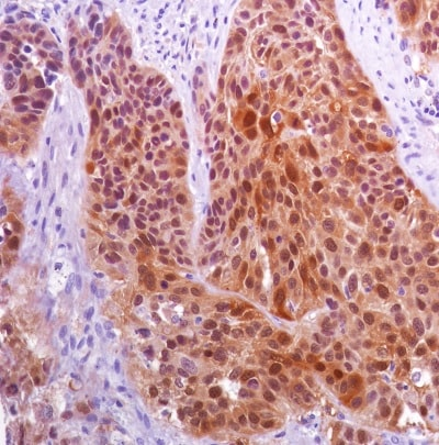 Immunohistochemistry (Formalin/PFA-fixed paraffin-embedded sections) - Anti-CTAG1B antibody [SP349] - BSA and Azide free (ab242416)