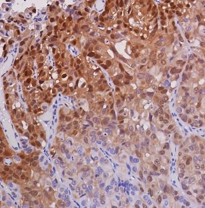 Immunohistochemistry (Formalin/PFA-fixed paraffin-embedded sections) - Anti-ERK1 + ERK2 antibody [SP327] - BSA and Azide free (ab242418)