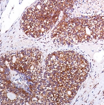 Immunohistochemistry (Formalin/PFA-fixed paraffin-embedded sections) - Anti-eIF4G1 (phospho S1108) antibody [SP351] - BSA and Azide free (ab242419)