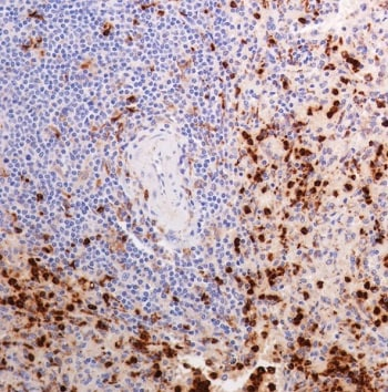 Immunohistochemistry (Formalin/PFA-fixed paraffin-embedded sections) - Anti-Lysozyme antibody [SP329] - BSA and Azide free (ab242420)