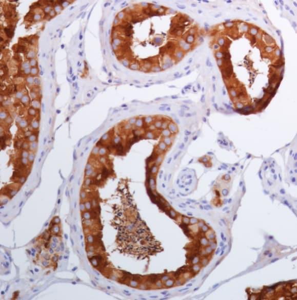 Immunohistochemistry (Formalin/PFA-fixed paraffin-embedded sections) - Anti-Inhibin alpha antibody [SP323] - BSA and Azide free (ab242422)