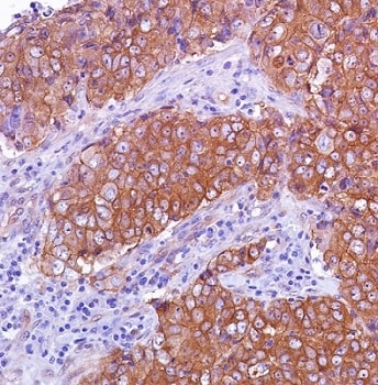 Immunohistochemistry (Formalin/PFA-fixed paraffin-embedded sections) - Anti-beta Catenin antibody [SP328] - BSA and Azide free (ab242424)