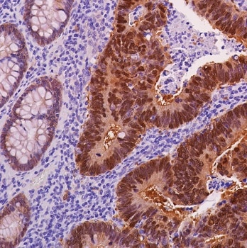 Immunohistochemistry (Formalin/PFA-fixed paraffin-embedded sections) - Anti-beta Catenin antibody [SP328] - BSA and Azide free (ab242424)