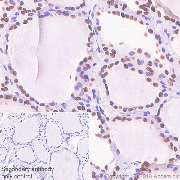 Immunohistochemistry (Formalin/PFA-fixed paraffin-embedded sections) - Anti-TTF1 antibody [SP141] - BSA and Azide free (ab242428)