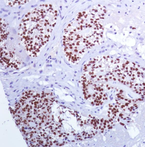Immunohistochemistry (Formalin/PFA-fixed paraffin-embedded sections) - Anti-PAX8 antibody [SP348] - BSA and Azide free (ab242429)