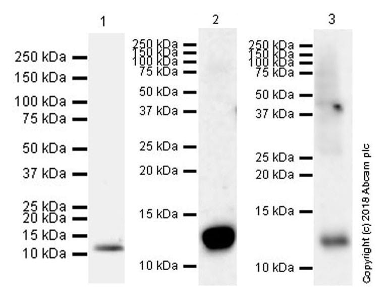 Western blot - Anti-S100A9 antibody [EPR22332-75] (ab242945)