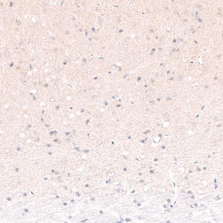 Immunohistochemistry (Formalin/PFA-fixed paraffin-embedded sections) - Anti-Brn-2 antibody [CL6232] (ab243026)
