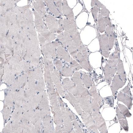 Immunohistochemistry (Formalin/PFA-fixed paraffin-embedded sections) - Anti-THSD7A antibody [CL3778] (ab243031)