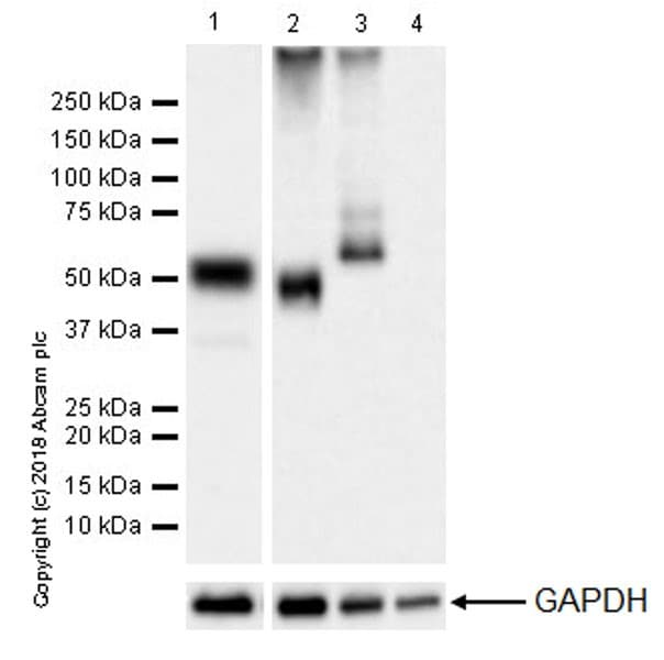 Western blot - Anti-Coronin 1a/TACO antibody [EPR19467-81] (ab243090)
